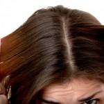 Эффективные маски для волос от перхоти